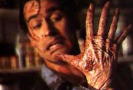 weird-diseases-alien-hand-syndrome
